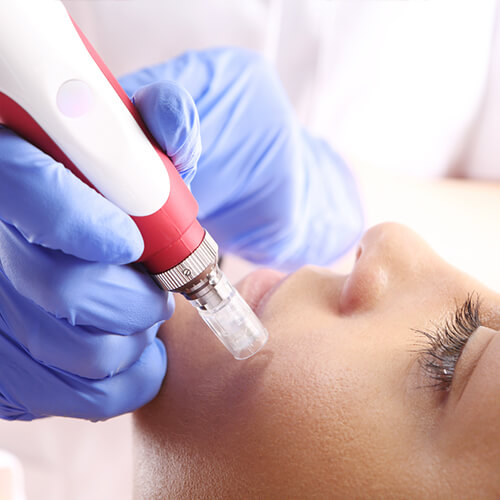 Hydrafacial & Advanced Hydrafacial