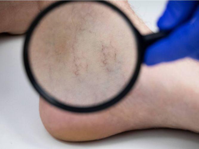 Laser Vascularity