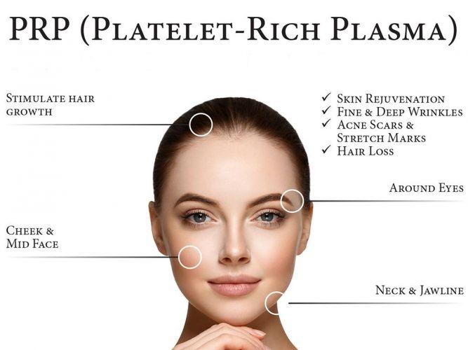 plasma rich platelet injections