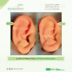 اسأل طبيب جراح تجميل دكتور جمال جمعة عن تجميل الاذن ميدارت فنون الطب الرياض