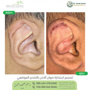 تصحيح استدارة صوان الاذن بالتخدير الموضعي الدكتور جمال جمعه ميدارت الرياض