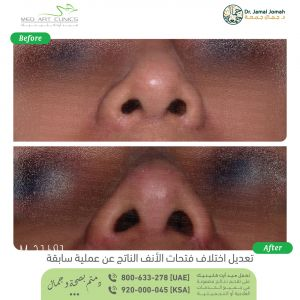 تعديل اختلاف فتحات الانف الناتج عن عملية سابقة الدكتور جمال جمعه عيادات ميدارت