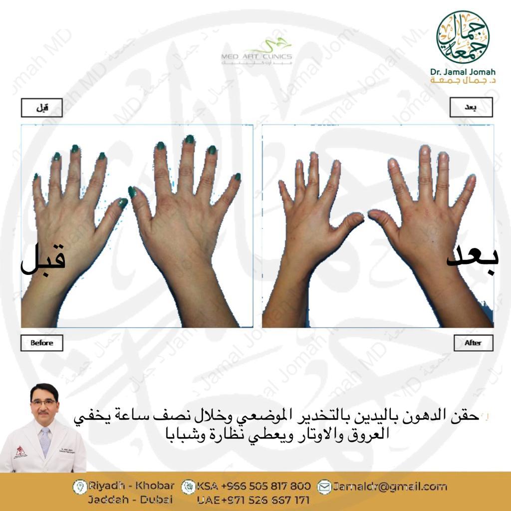 افضل جراح حقن دهون قبل وبعد عيادات ميدارت الرياض فنون الطب الدكتور جمال جمعه 2