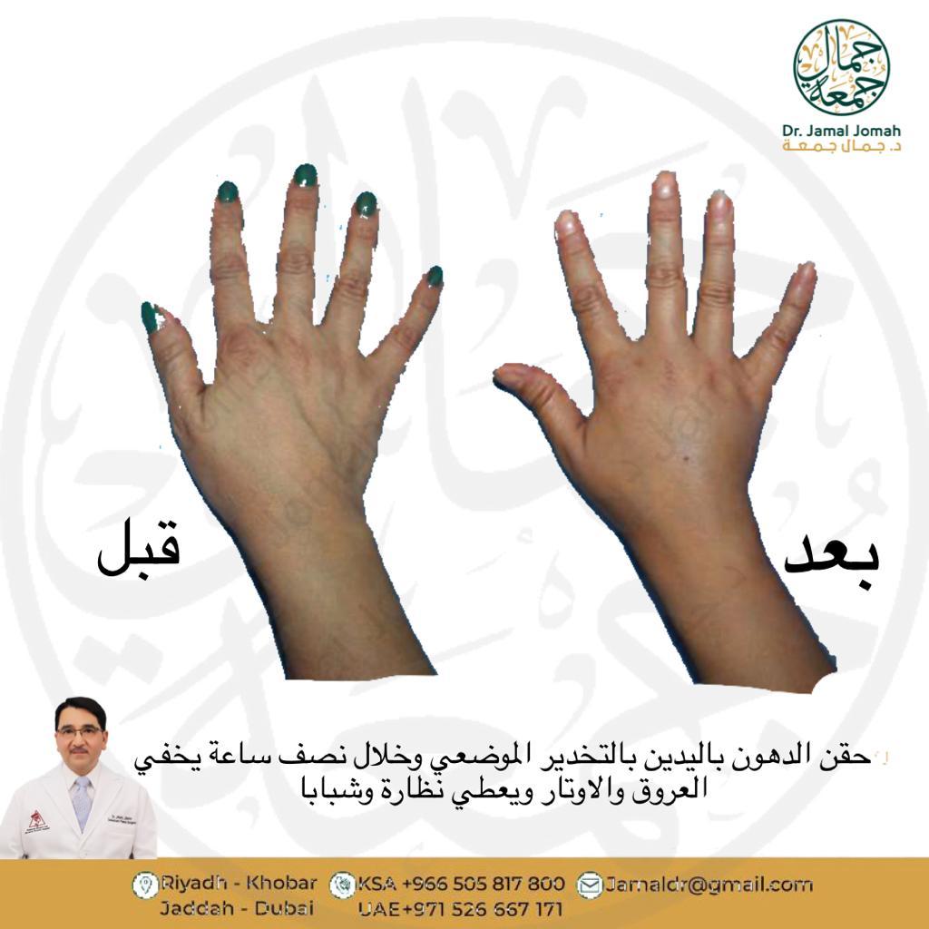 افضل جراح حقن دهون قبل وبعد عيادات ميدارت الرياض فنون الطب الدكتور جمال جمعه 3