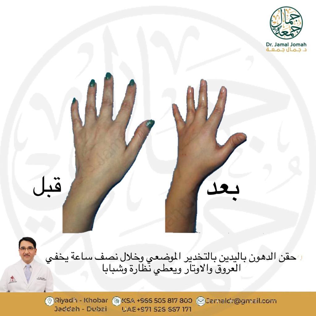 افضل جراح حقن دهون قبل وبعد عيادات ميدارت الرياض فنون الطب الدكتور جمال جمعه