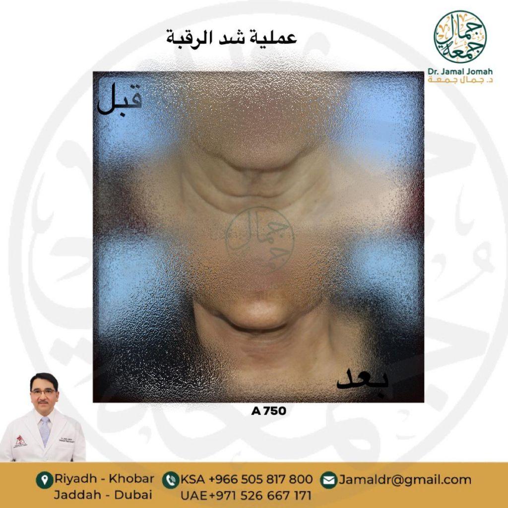 عملية شد الرقبة مع استشاري جراحة تجميل الدكتور جمال جمعه ميدارت الرياض 1