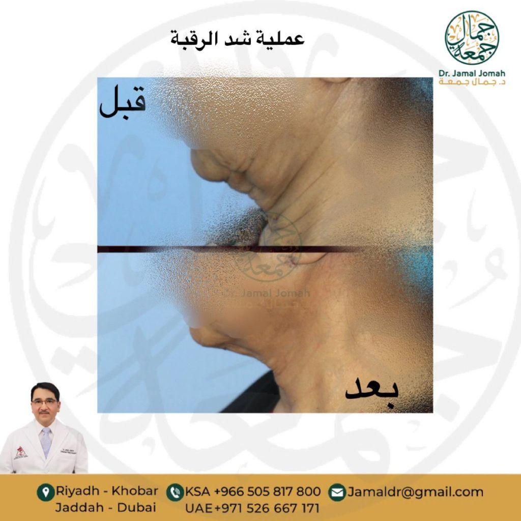 عملية شد الرقبة مع استشاري جراحة تجميل الدكتور جمال جمعه ميدارت الرياض 3