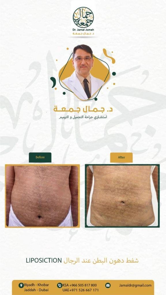 نتائج شفط دهون البطن عند الرجال لاستشاري جراحة التجميل الدكتور جمال جمعه ميدارت الرياض 2