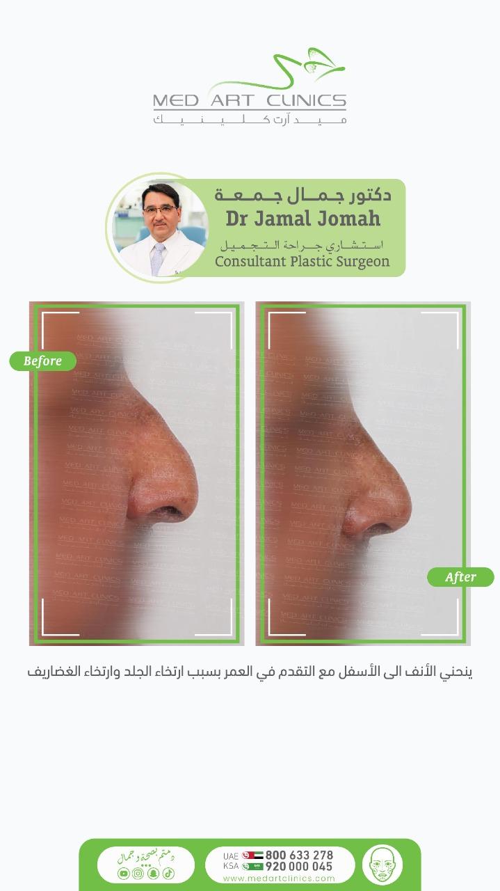 ينحني الأنف الى الأسفل مع التقدم في العمر بسبب ارتخاء الجلد وارتخاء الغضاريف 2