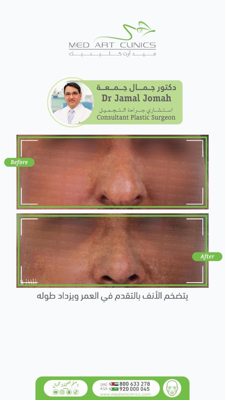 ينحني الأنف الى الأسفل مع التقدم في العمر بسبب ارتخاء الجلد وارتخاء الغضاريف 3