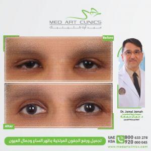 تجميل ورفع الجفون المرتخية يظهر اتساع وجمال العيون